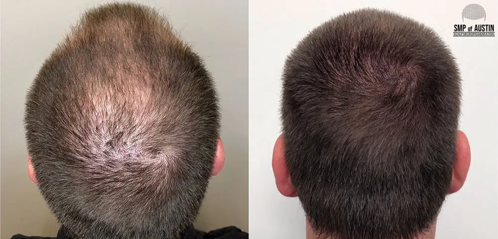 Scalp Micropigmentation Treatment in Austin