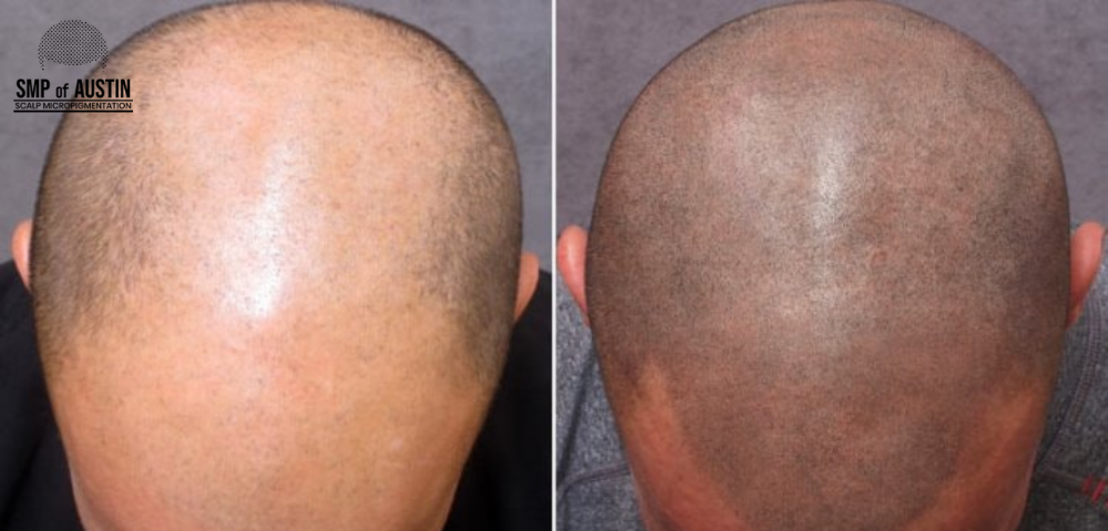 Scalp micropigmentation, SMP session, SMP aftercare tips