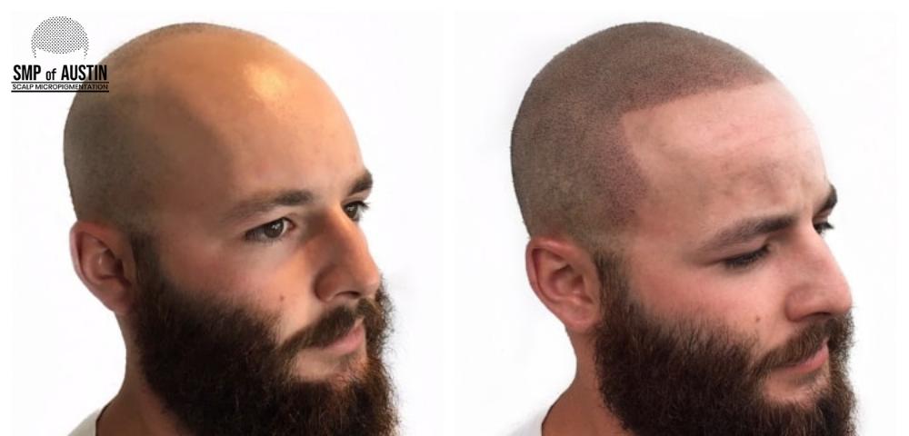 scalp micropigmentation in Austin