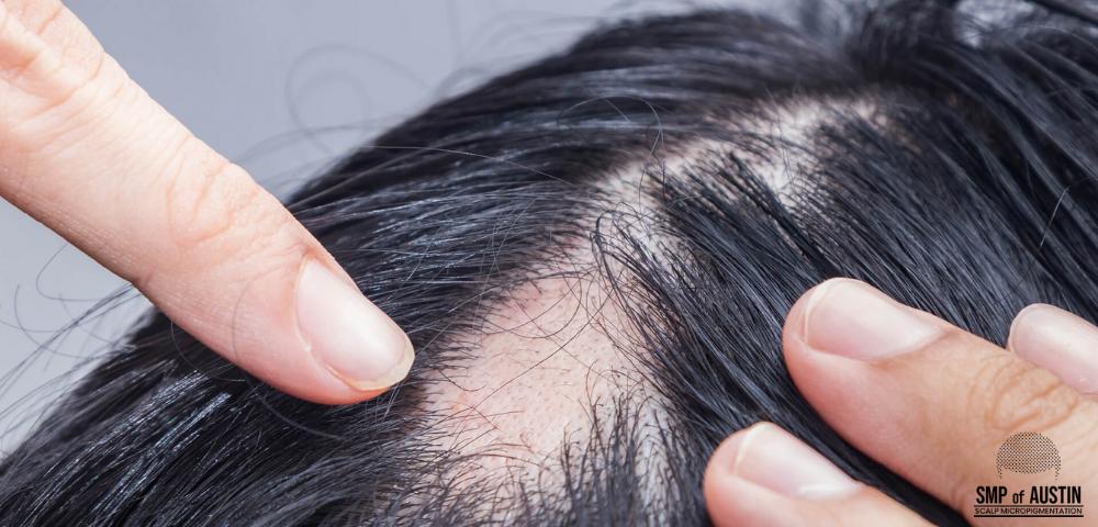 hair loss treatment in Austin, TX