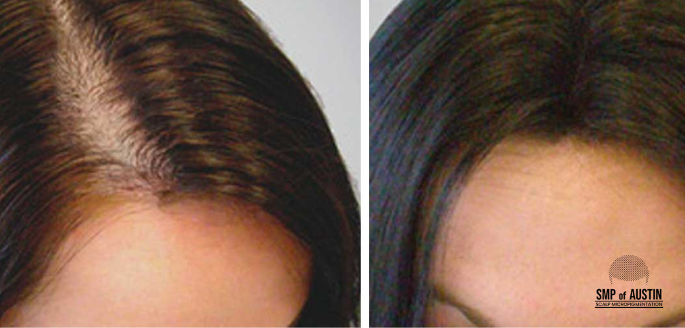 right hair loss treatment in Austin, TX