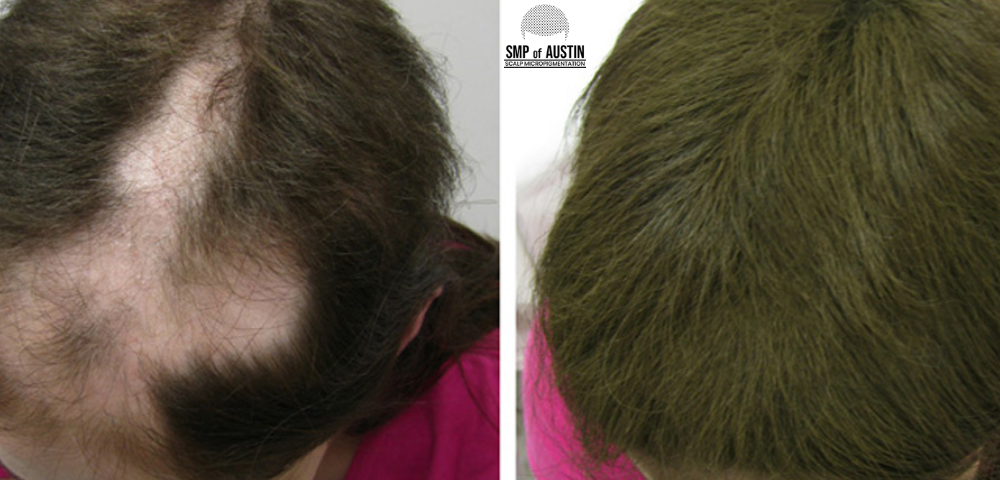 bald spot coverage for women in Austin
