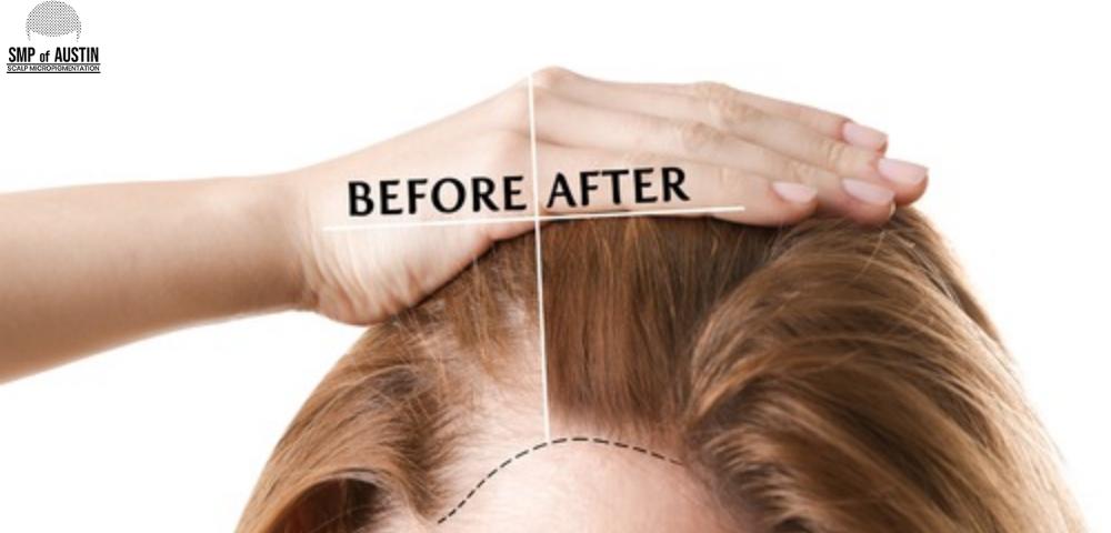 Alopecia Areata Treatment in Austin