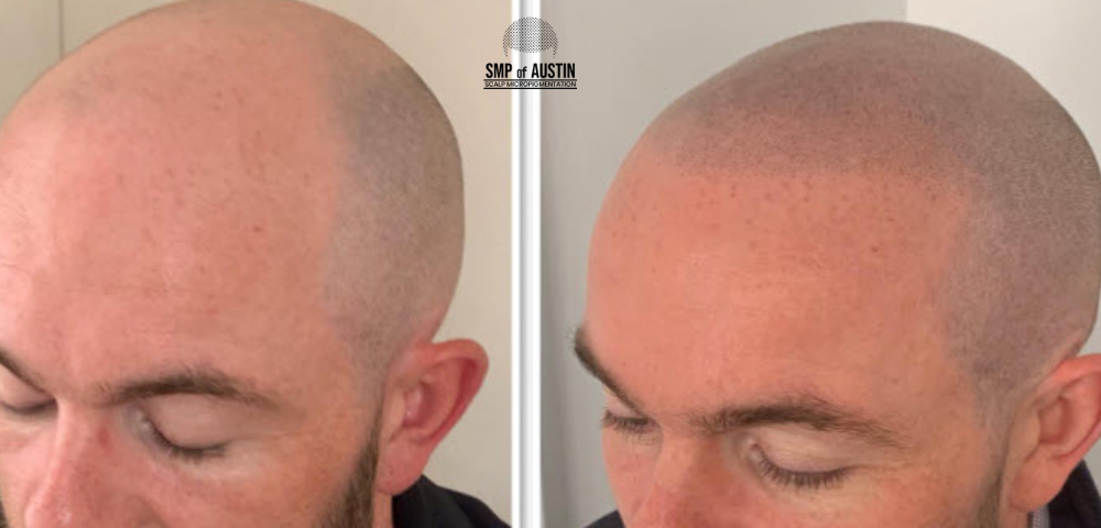 Hair Loss Treatment in Austin,