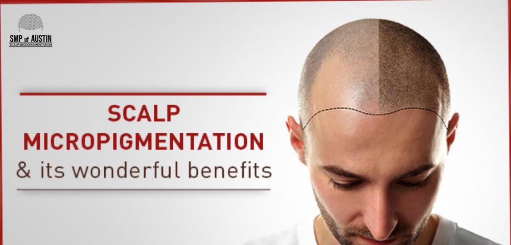 Scalp Micropigmentation in Austin, TX; Scalp Micropigmentation Treatment in Austin, TX