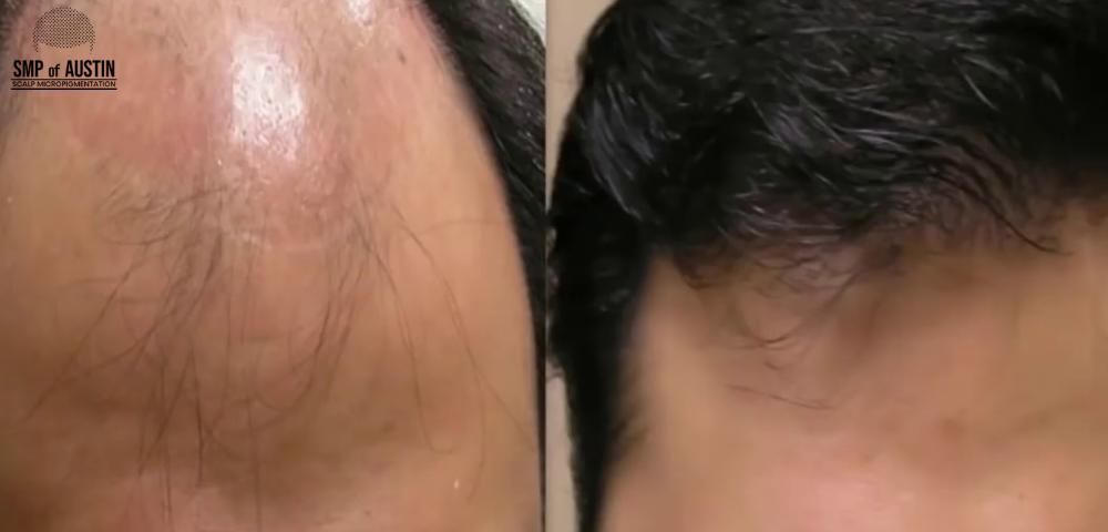 treating female pattern hair loss in Austin, TX