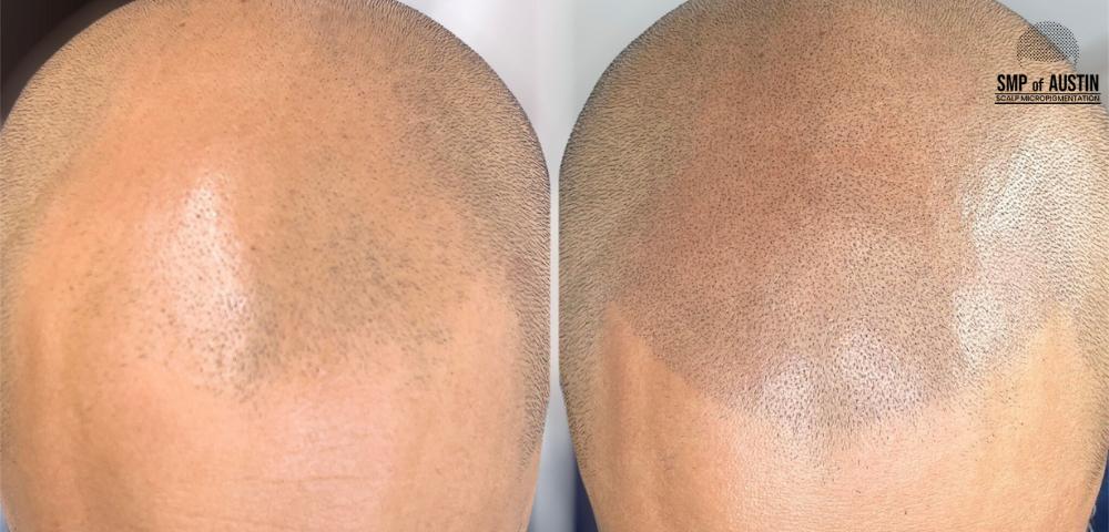 hair loss treatment in Austin